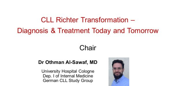 CLL Richter Transformation – Patient Journey from CLL to RT